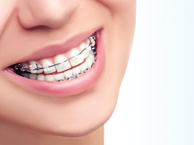 7 Tips for Teens Traveling With Braces